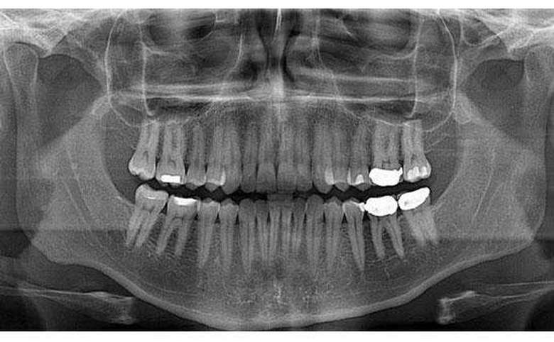 x-ray of a mouth with multiple fillings