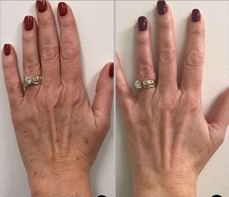 before and after hand