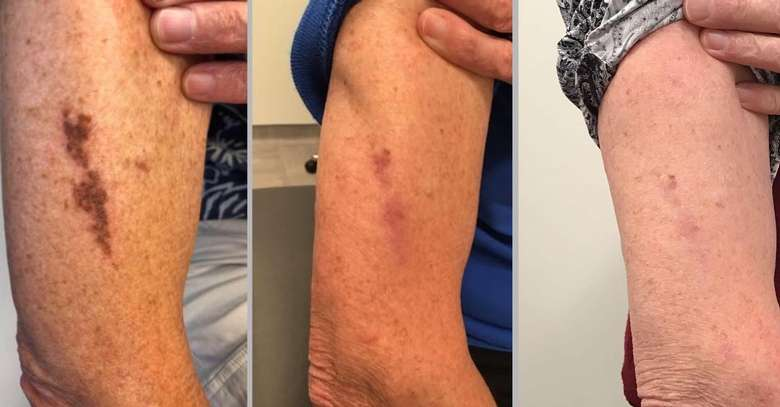 before and after photos of arm scar reduction