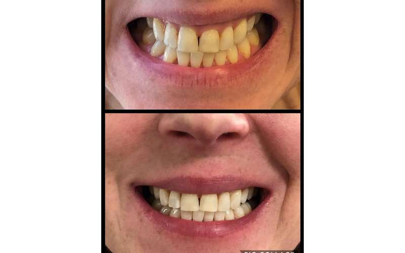 side by side comparison of teeth whitening