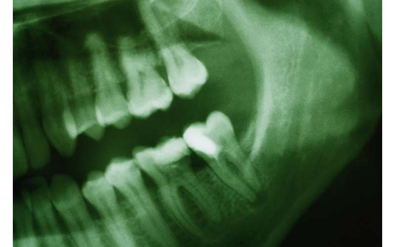 close up of a dental x-ray