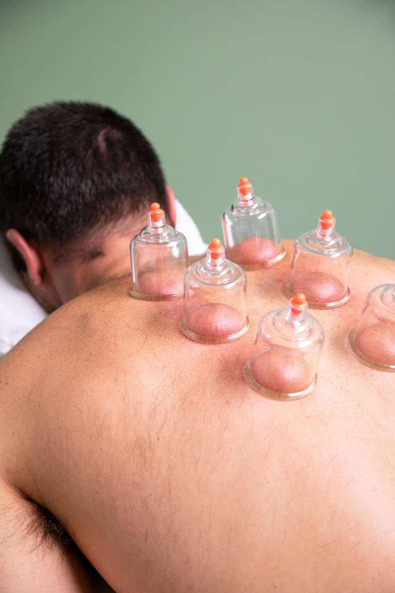 cupping on a man's back