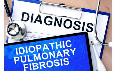 Photo of papers stating Diagnosis:Idiopathic Pulmonary Fibrosis