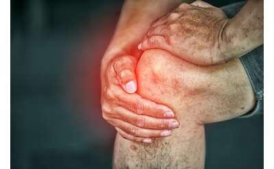 Arthritis in Hip & Knees
