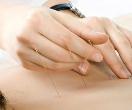 person performing acupuncture